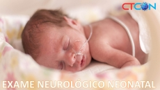 Exame Neurológico Neonatal